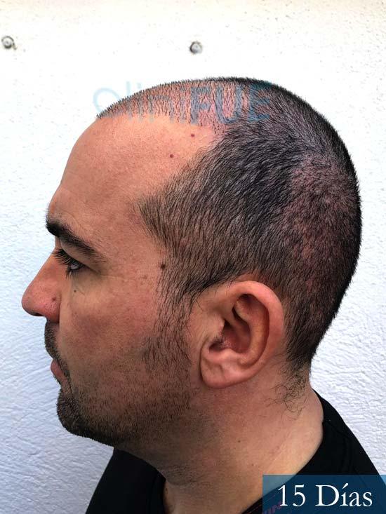 Angel Carlos 42 Caceres injerto de pelo dia operacion 15 dias 4