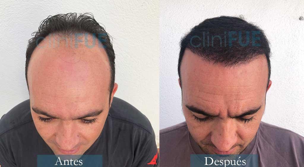 Injerto capilar de Ángel Carlos 42 Años de Cáceres con cliniFUE ¡Qué contento está!