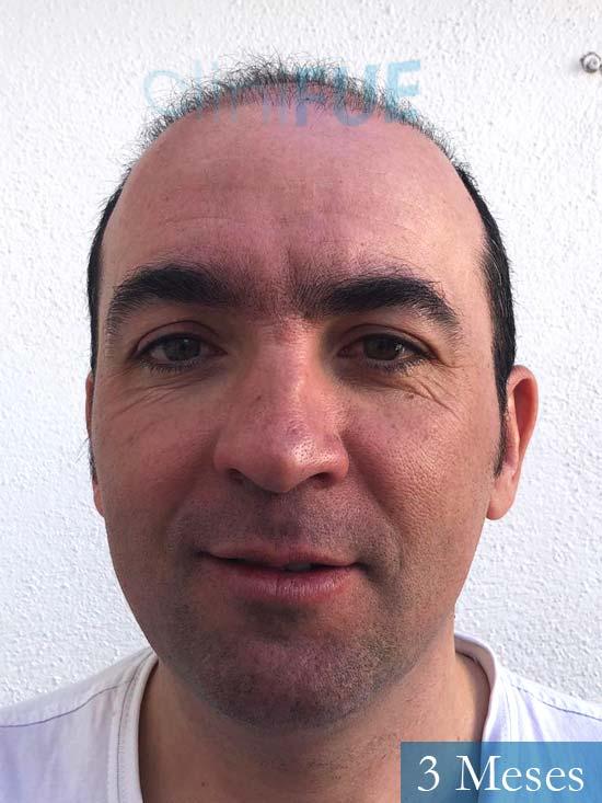 Angel Carlos 42 Caceres injerto de pelo dia operacion 3 meses