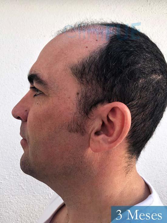 Angel Carlos 42 Caceres injerto de pelo dia operacion 3 meses 4