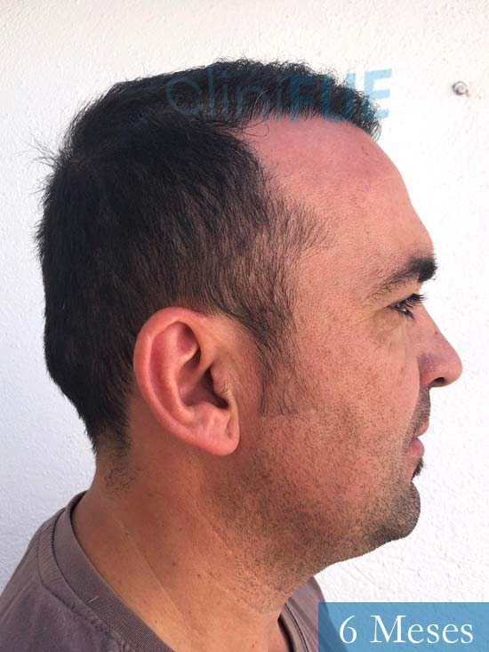 Angel Carlos 42 Caceres injerto de pelo dia operacion 6 meses 3