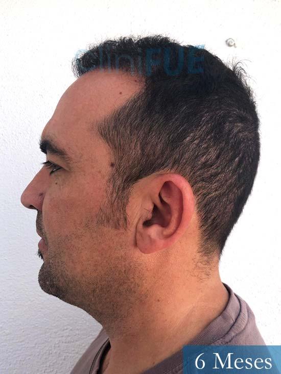 Angel Carlos 42 Caceres injerto de pelo dia operacion 6 meses 4
