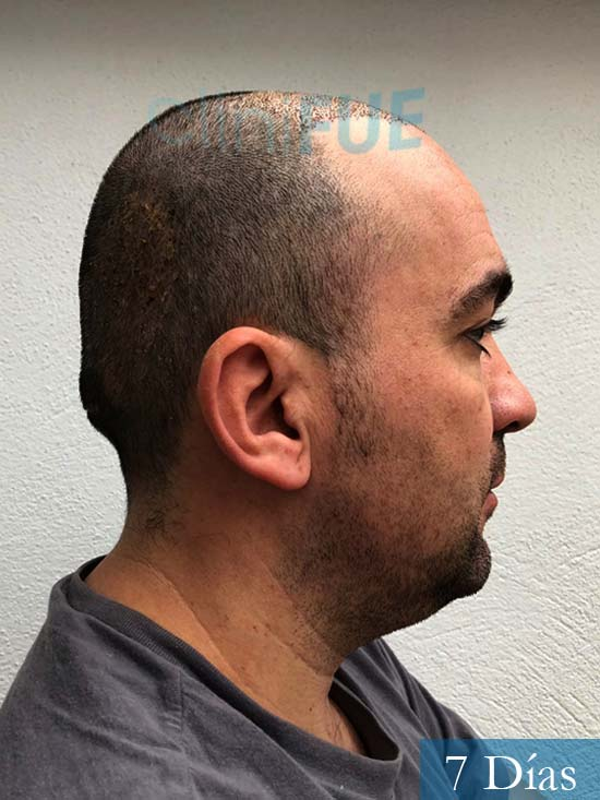 Angel Carlos 42 Caceres injerto de pelo dia operacion 7 dias 3