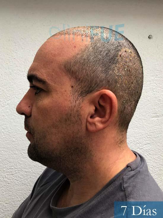 Angel Carlos 42 Caceres injerto de pelo dia operacion 7 dias 5
