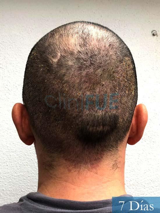 Angel Carlos 42 Caceres injerto de pelo dia operacion 7 dias 6