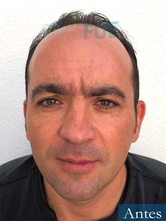 Angel Carlos 42 Caceres injerto de pelo Antes