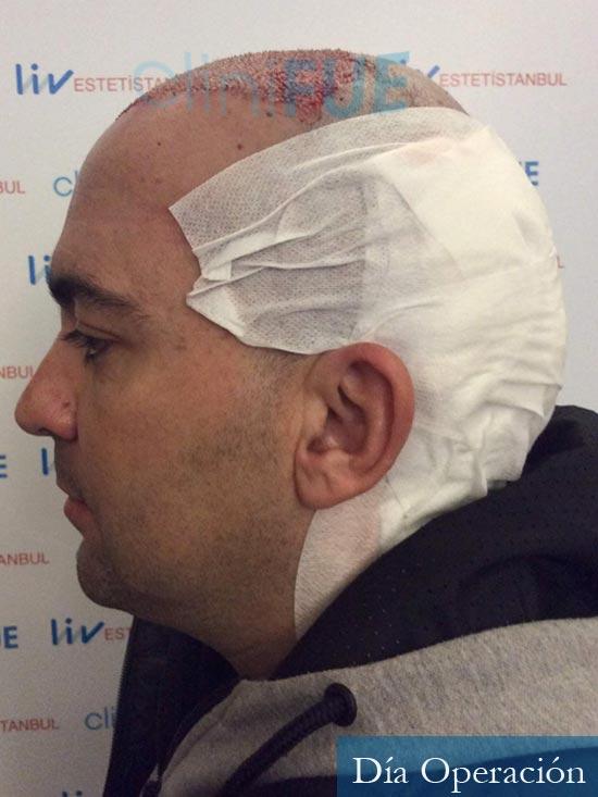 Angel Carlos 42 Caceres injerto de pelo dia operacion 4