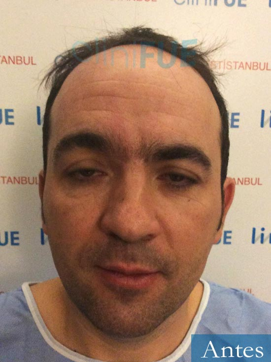 Angel Carlos 42 Caceres injerto de pelo dia operacion Antes