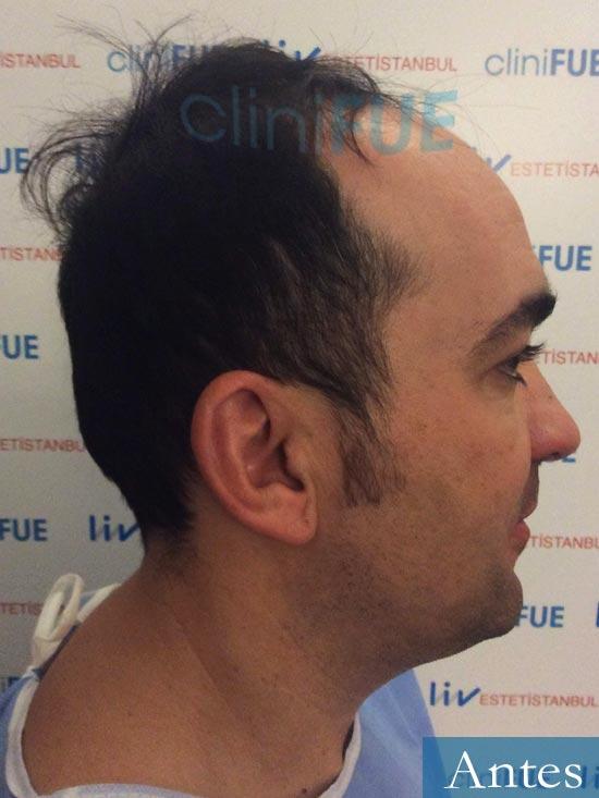 Angel Carlos 42 Caceres injerto de pelo dia operacion Antes 3