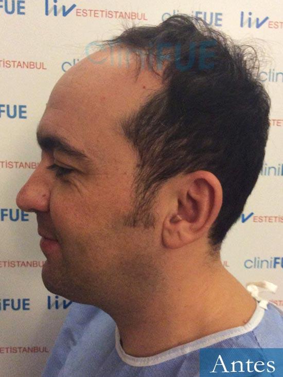 Angel Carlos 42 Caceres injerto de pelo dia operacion Antes 4