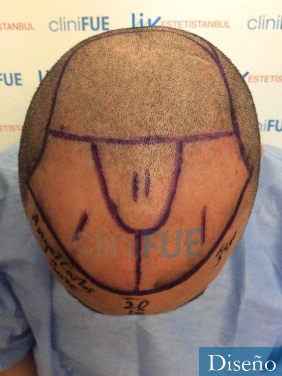 Angel Carlos 42 Caceres injerto de pelo dia operacion diseno 2
