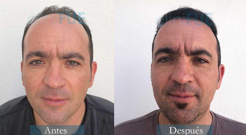 Angel Carlos 42 años Caceres 3200 UF injerto capilar