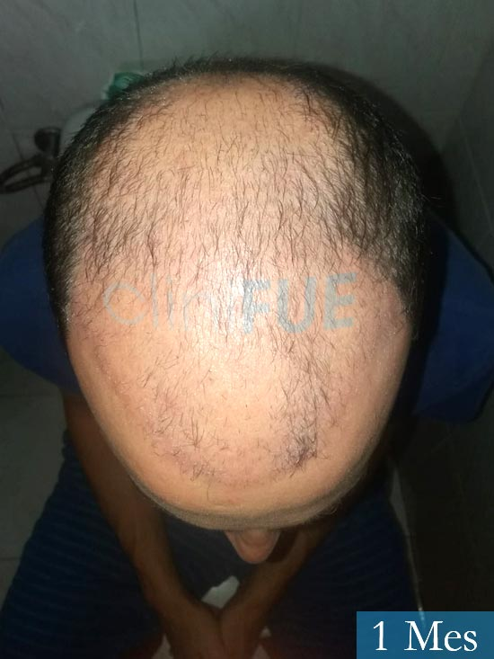 Eusebio 29 Barcelona trasplante pelo 1 mes 3