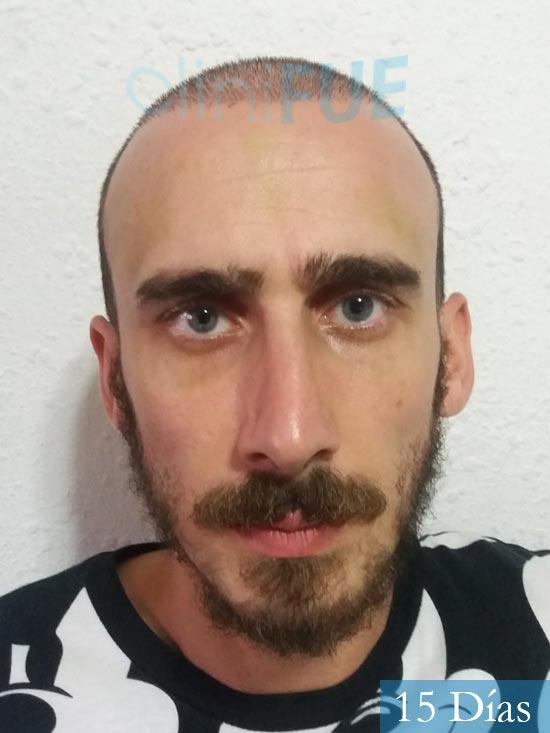 Eusebio 29 Barcelona trasplante pelo 15 dias