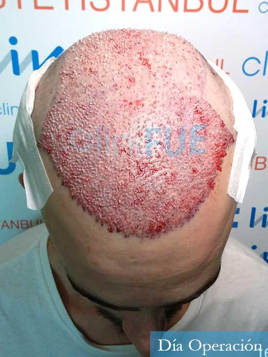 Eusebio 29 Barcelona trasplante pelo dia operacion 3