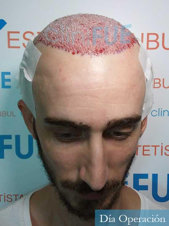 Eusebio 29 Barcelona trasplante pelo dia operacion 2