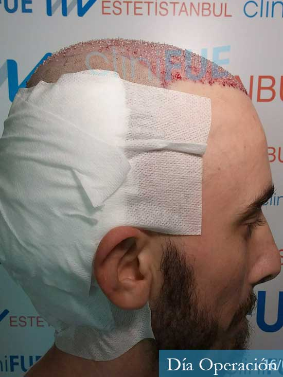 Eusebio 29 Barcelona trasplante pelo dia operacion 4
