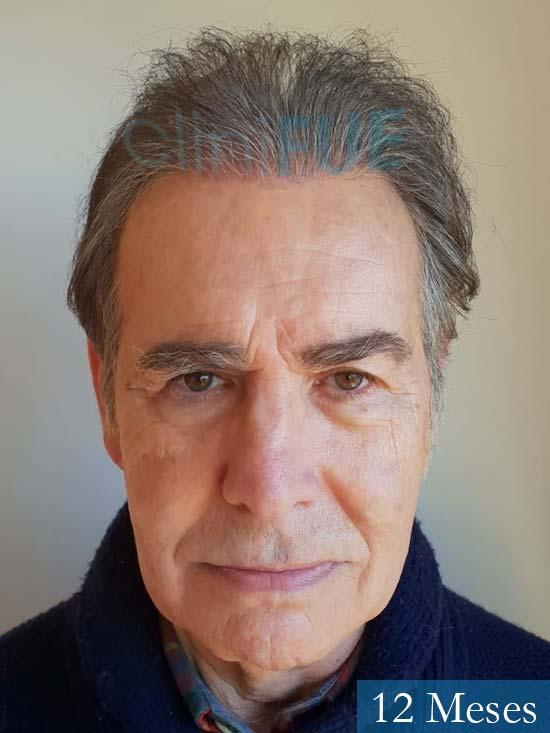 Fernando 58 Pontevedra injerto capilar estambul 12 meses