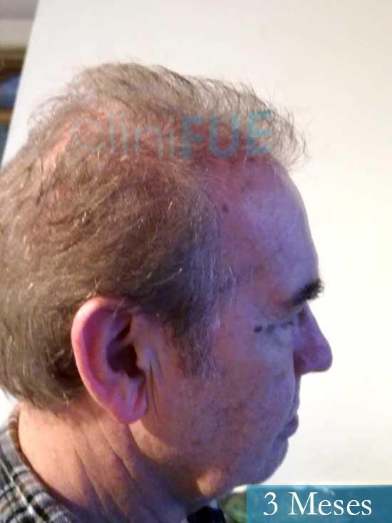 Fernando 58 Pontevedra injerto capilar estambul 3 meses