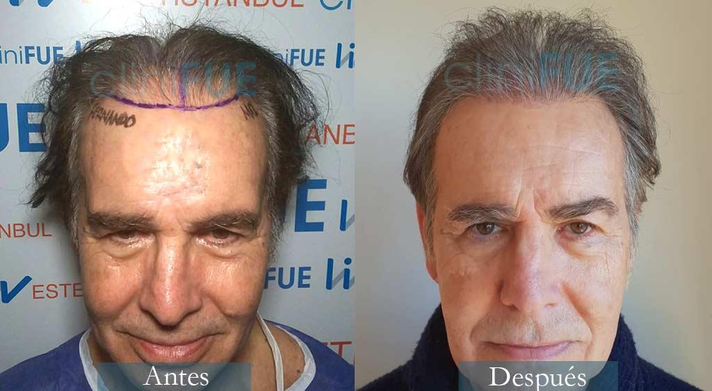 Trasplante capilar de Fernando 69 Años de Pontevedra con cliniFUE