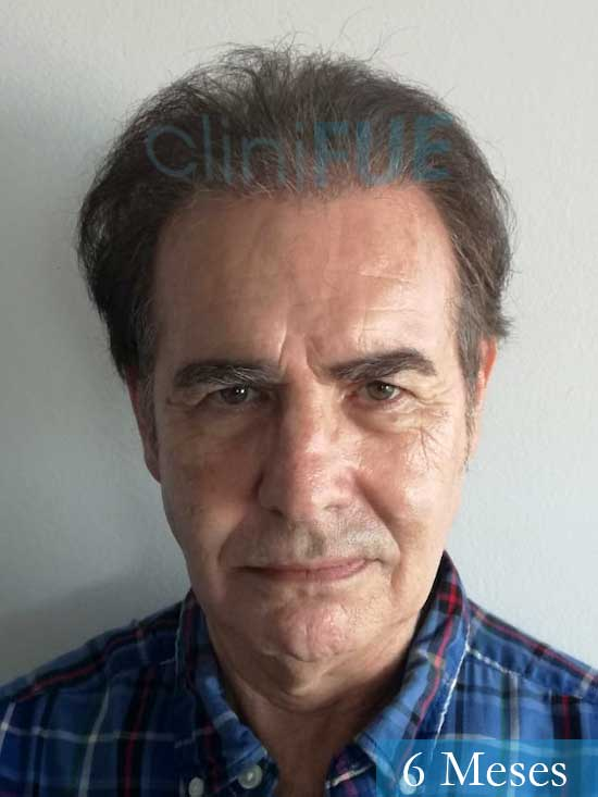 Fernando-58-Pontevedra-injerto-capilar-estambul-6-meses-