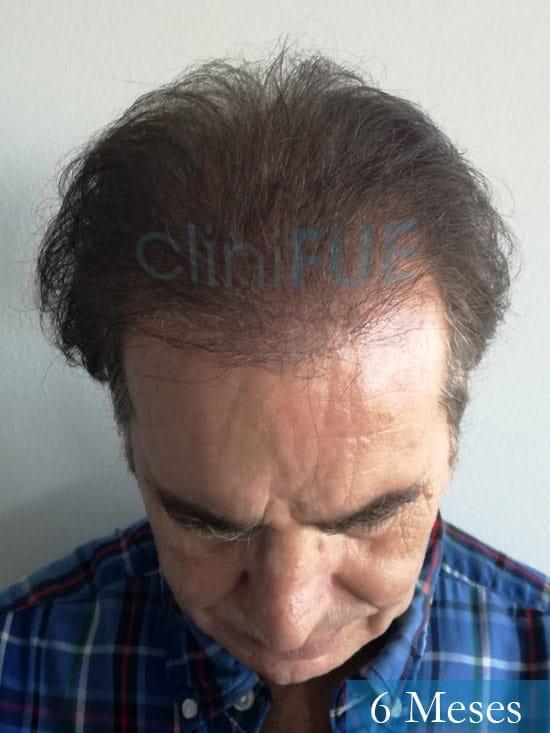 Fernando-58-Pontevedra-injerto-capilar-estambul-6-meses-2
