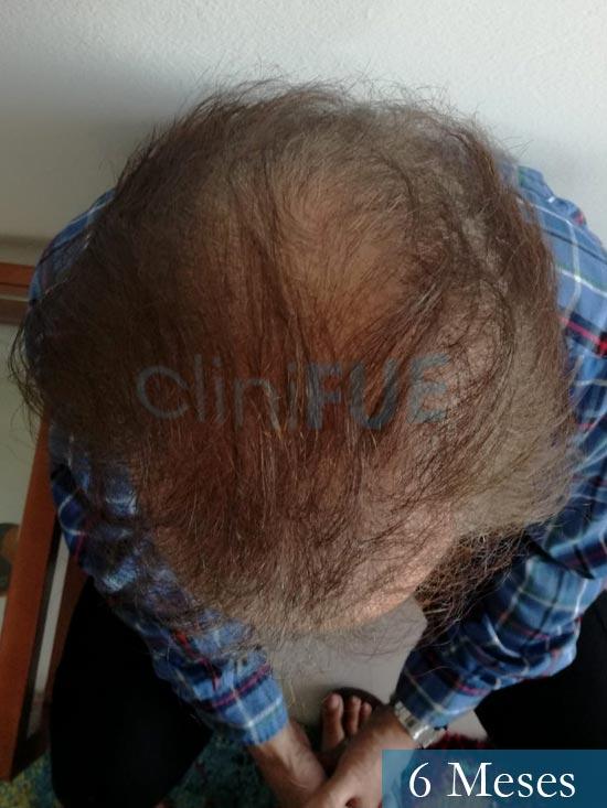 Fernando-58-Pontevedra-injerto-capilar-estambul-6-meses-3