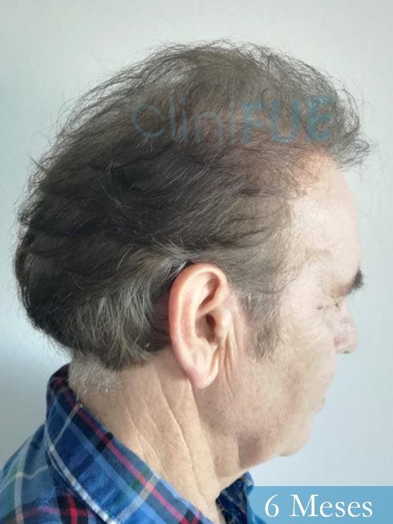 Fernando-58-Pontevedra-injerto-capilar-estambul-6-meses-4