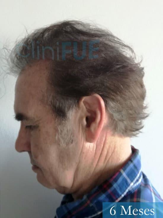 Fernando-58-Pontevedra-injerto-capilar-estambul-6-meses-5