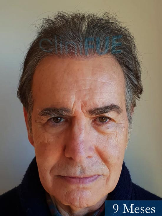 Fernando 58 Pontevedra injerto capilar estambul 9 meses