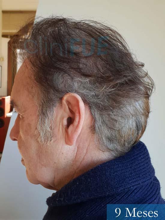Fernando 58 Pontevedra injerto capilar estambul 9 meses 4