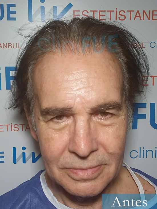 Fernando-58-Pontevedra-injerto-capilar-estambul-dia operacion antes