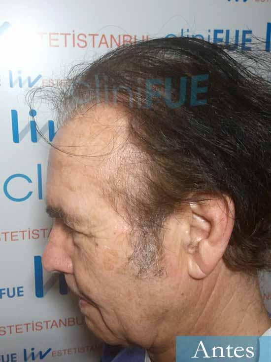 Fernando-58-Pontevedra-injerto-capilar-estambul-dia operacion antes 4