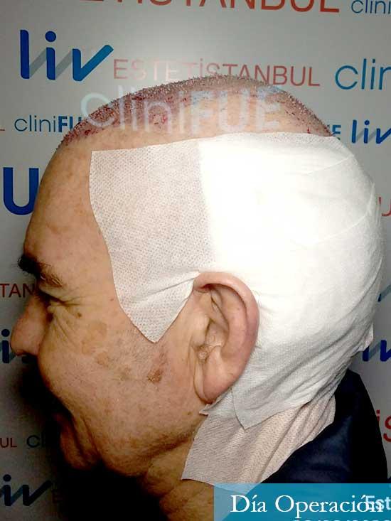 Fernando 58 Pontevedra injerto capilar estambul dia operacion 5