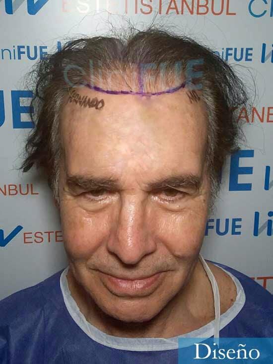 Fernando 58 Pontevedra injerto capilar estambul dia operacion diseno