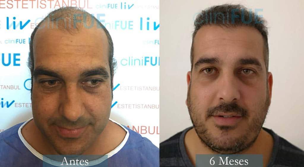 Injerto capilar de Isaac 37 Años de Cádiz con cliniFUE