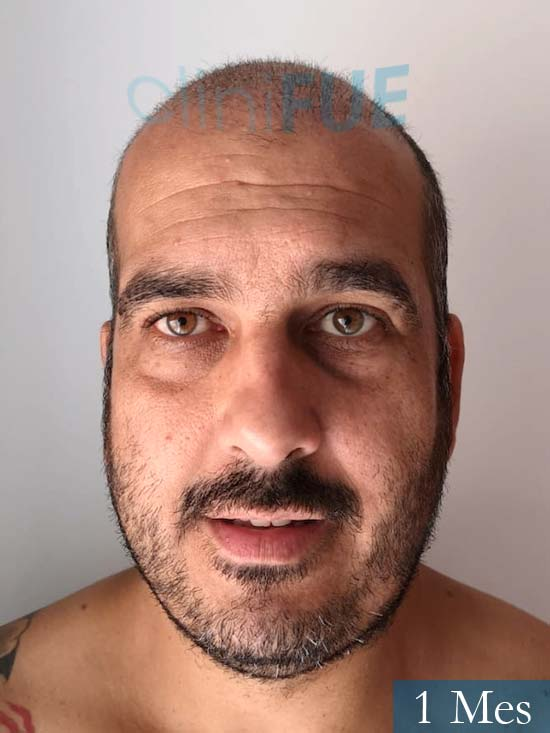 Isaac 37 Cadiz injerto de pelo dia operacion 1 mes