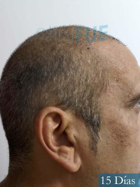 Isaac 37 Cadiz injerto de pelo dia operacion 15 dias 4