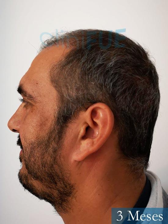 Isaac 37 Cadiz injerto de pelo dia operacion 3 meses 5