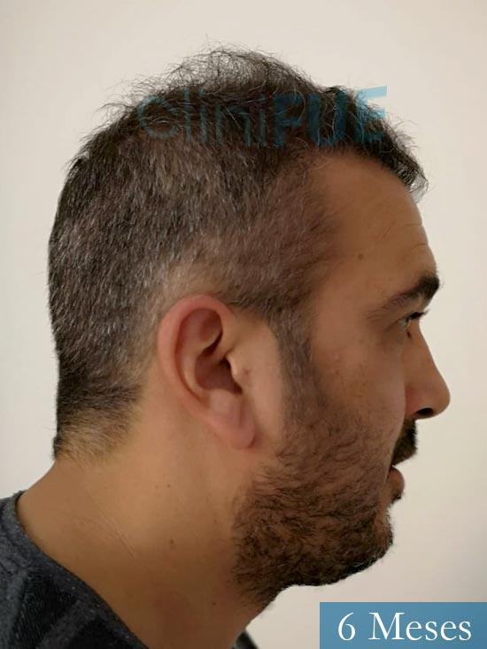 Isaac 37 Cadiz injerto de pelo dia operacion 6 meses 4
