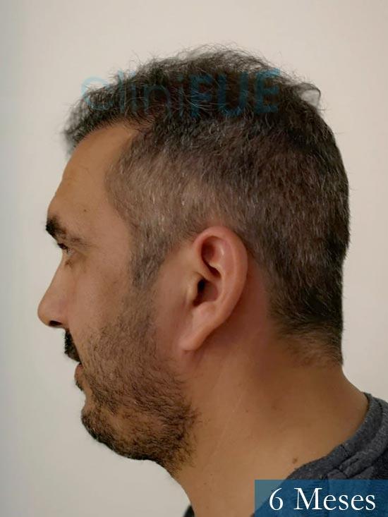Isaac 37 Cadiz injerto de pelo dia operacion 6 meses 5