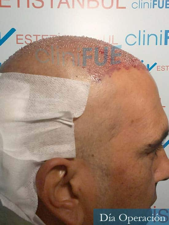 Isaac 37 Murcia injerto de pelo dia operacion dia operacion 3