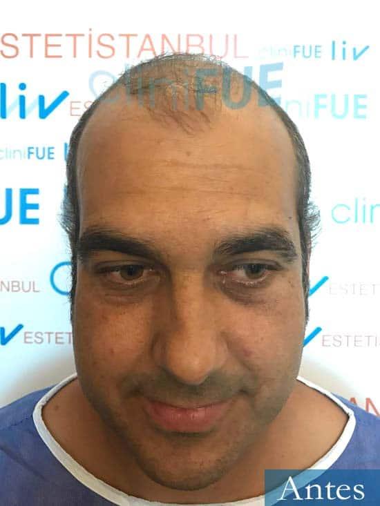 Isaac 37 Murcia injerto de pelo dia operacion Antes