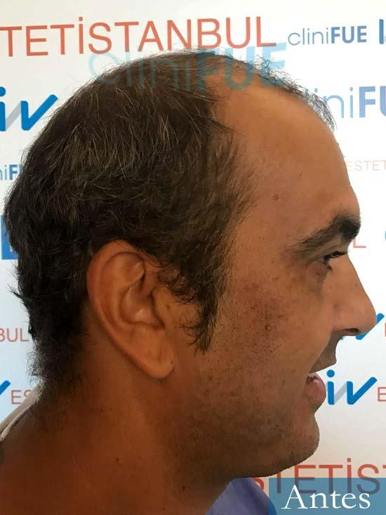 Isaac 37 Murcia injerto de pelo dia operacion Antes 3
