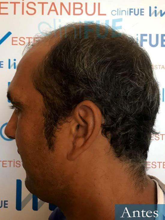 Isaac 37 Murcia injerto de pelo dia operacion Antes 4