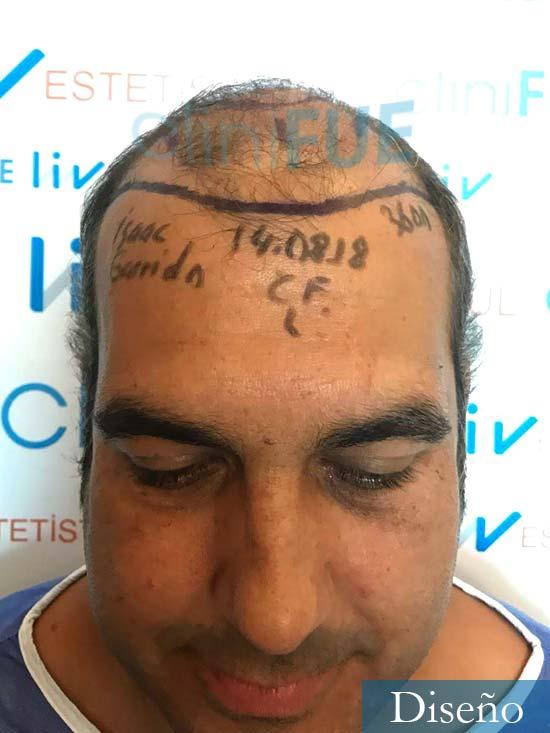 Isaac 37 Murcia injerto de pelo dia operacion dia operacion diseno