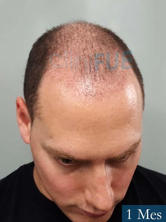Ivan trasplante de pelo turquia 1 mes