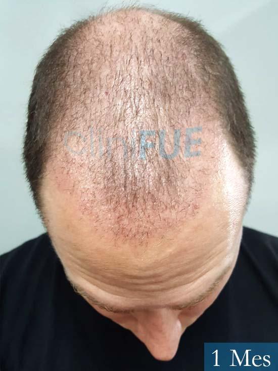 Ivan trasplante de pelo turquia 1 mes 2