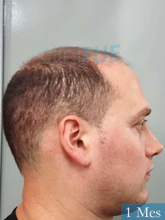 Ivan trasplante de pelo turquia 1 mes 3