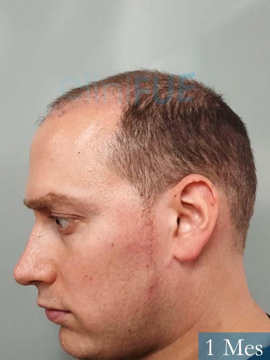 Ivan trasplante de pelo turquia 1 mes 4